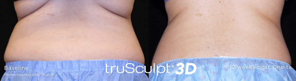 Before and After results - truSculpt 3D laser Back skin tightening treatment