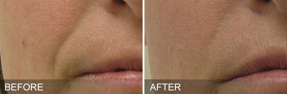 Before and After 4 HydraFacial MD treatments