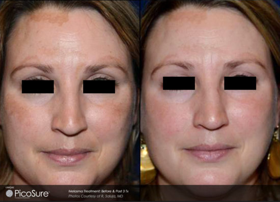 PicoSure Laser - pigmented lesions - Before and After