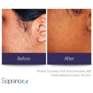 Soprano hair removal - before and after