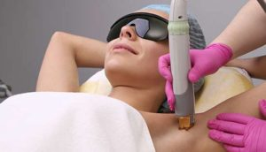 Excel HR hair removal treatment - armpit
