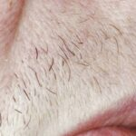before Alexandrite laser hair removal - closeup